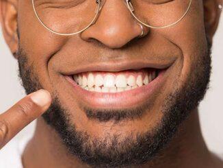 Helle und weiße Zähne bekommen   © fizkes - stock.adobe.com